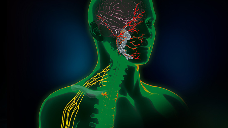 Direct Nerve Stimulation