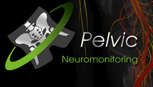 Intraoperatives Neuromonitoring